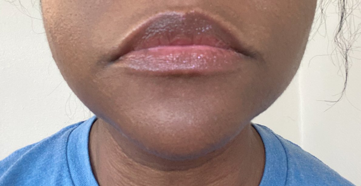 Disco queen lipgloss is shown on lips. Color looks clear on lips, lacking sparkle.